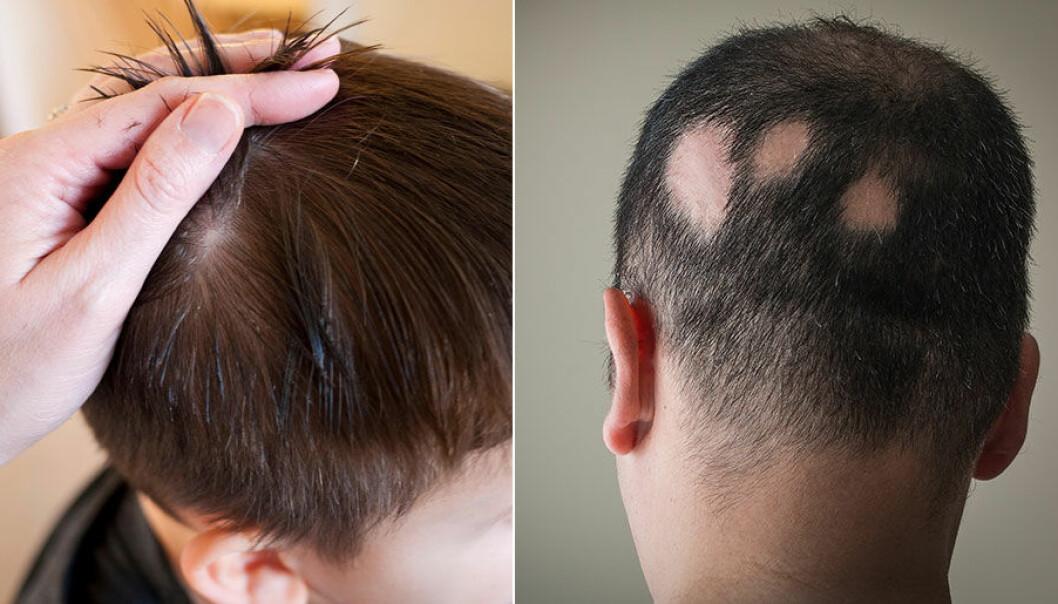 Fläckvis håravfall kvinna