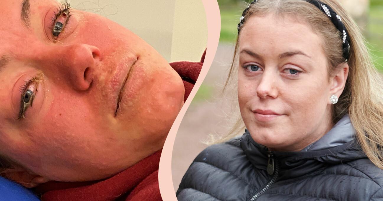 Alva Röine, 17, under och efter den svåra hudsjukdomen som var nära att kosta henne livet.