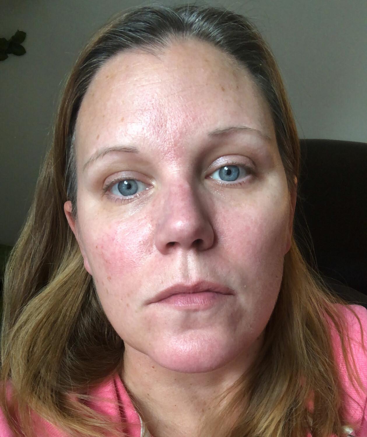 Anja L Sundberg är sjuk i covid-19 och tar en selfie för att visa upp rodnader i ansiktet.