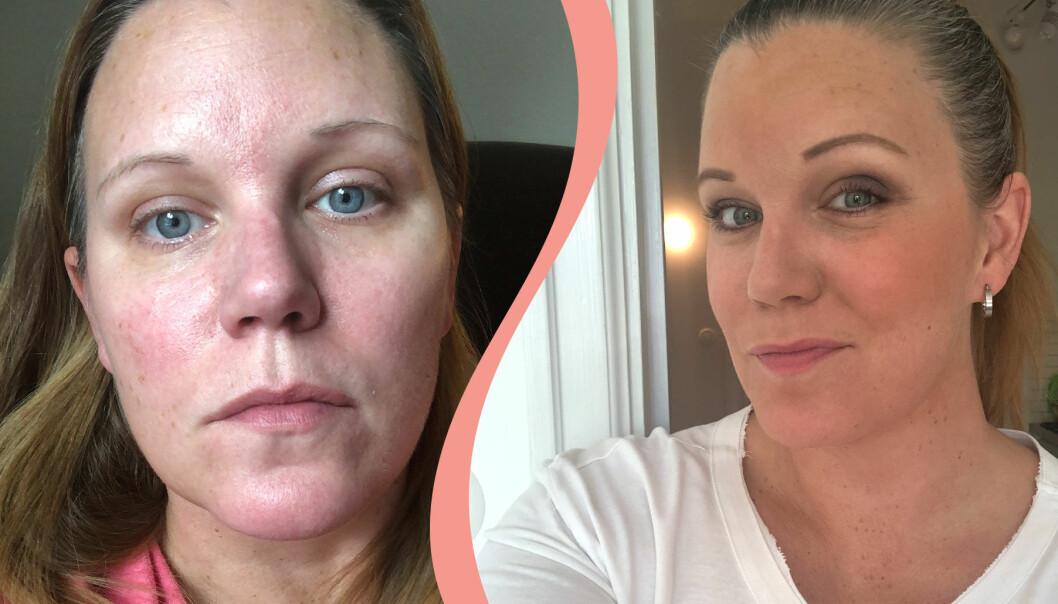 Delad bild: Till vänster syns Anja L Sundberg med rödflammig hud efter att ha varit sjuk i covid-19. Till höger syns Anja L Sundberg som frisk.