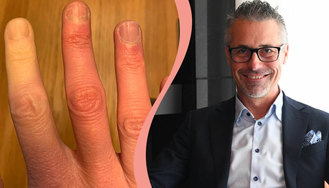 Delad bild: Till vänster syns en hand med Raynauds fenomen där ett finger har blivit vitt. Till höger en porträttbild på överläkaren Roger Hesselstrand.