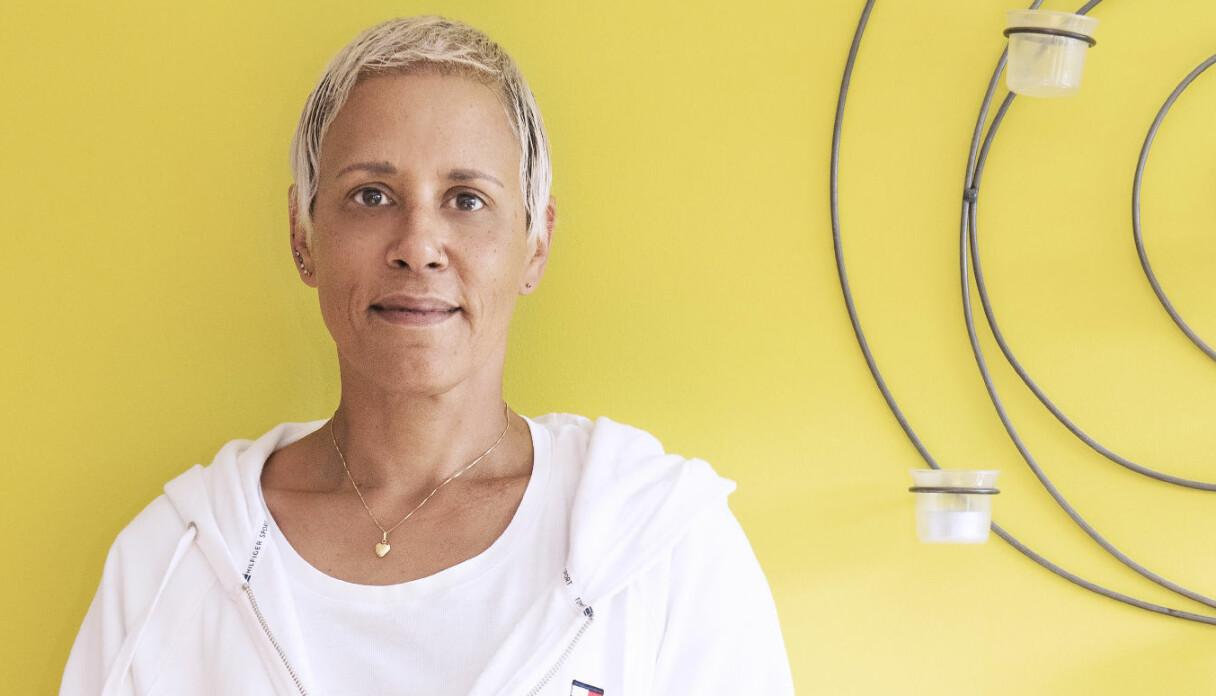 Kim Bornholm som tvingades till hårtransplantation då hennes hår inte växte tillbaka efter cancern.