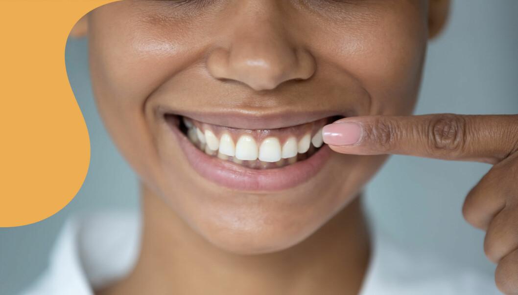 En leende kvinna pekar på sina tänder för att visa var plack vanligtvis sätter sig.