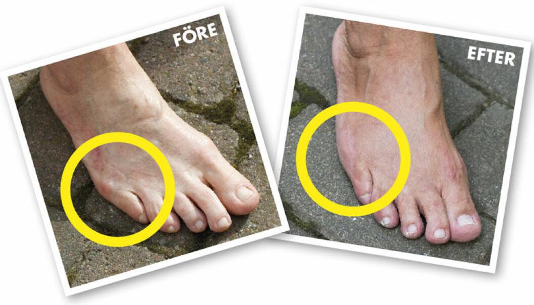 Fotproblem skräddarknuta – före och efter operation.