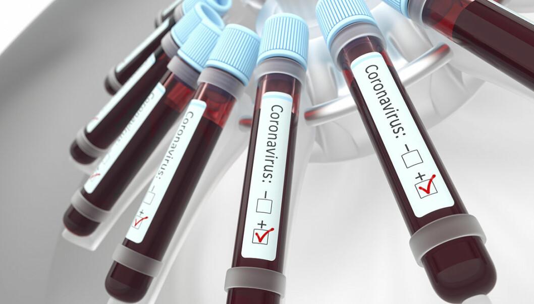 Prover med coronavirus, covid-19, i labmiljö.