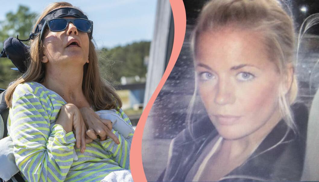 Christina Hedlund efter och före operationen