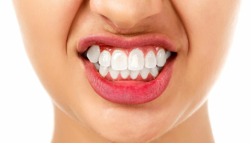 Leende kvinna visar tänderna och tandköttet