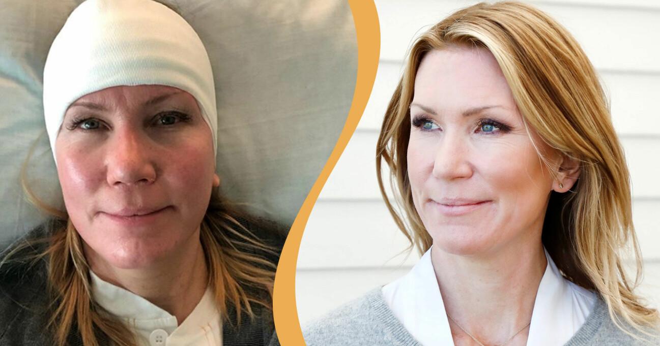 Jenny Alversjö opererades igen efter en stroke i höstas.
