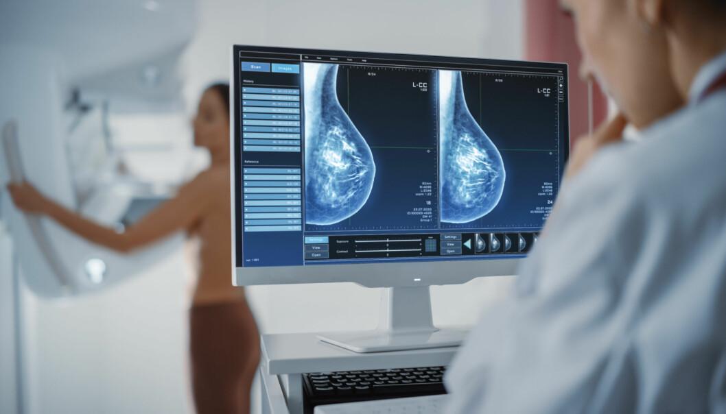 Läkare undersöker bröst mammografiscreening.