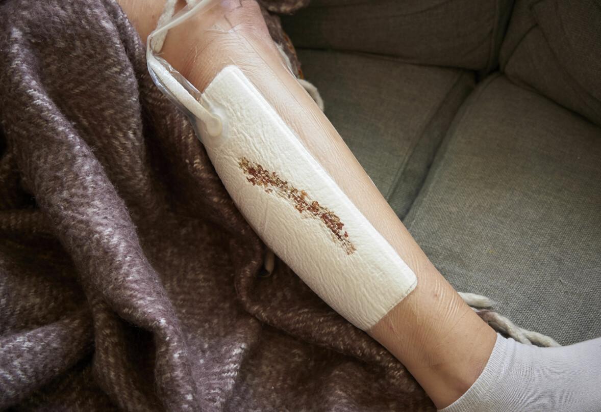 Matilda Mattsson skadade sig själv så svårt under perioder att hon fortfarande har bestående men.