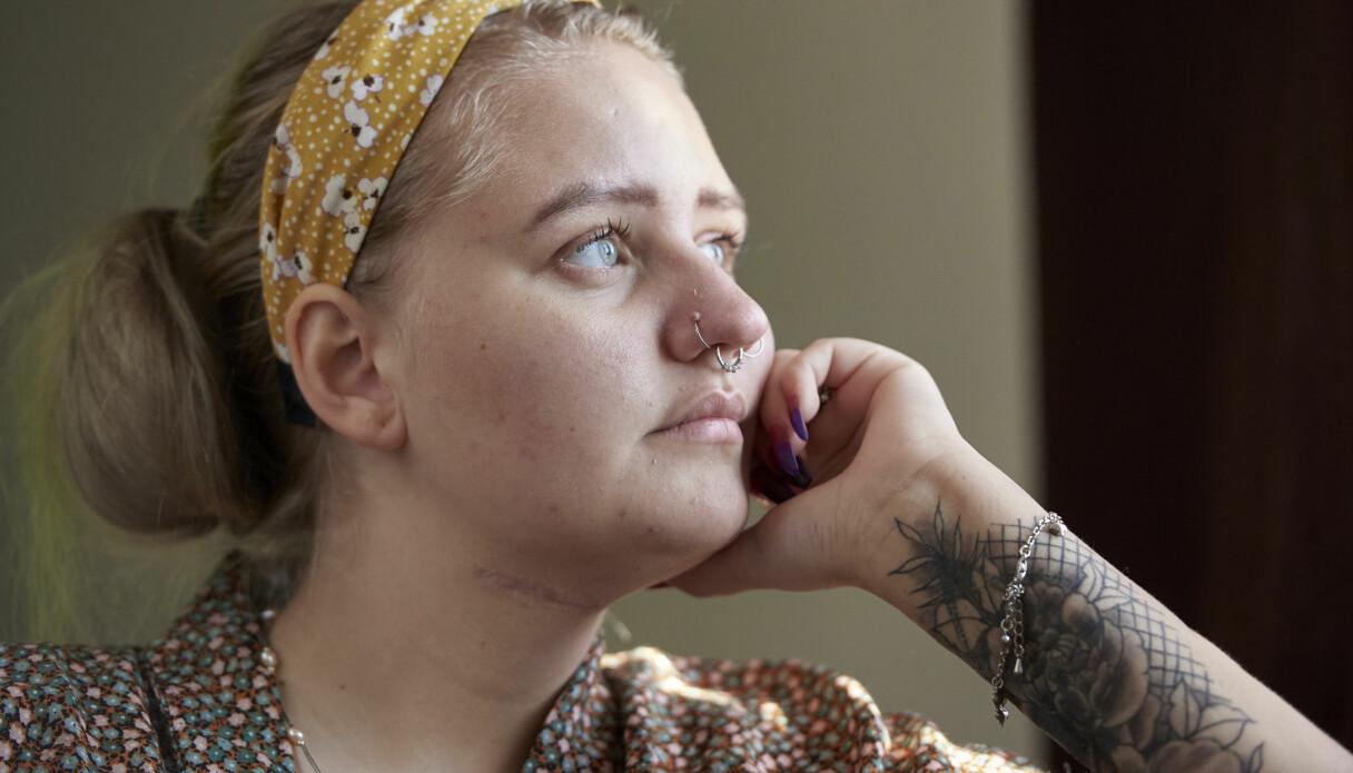 Matilda Mattsson visar upp ärret på halsen där hon skar sig själv i ett försök att ta sitt liv.