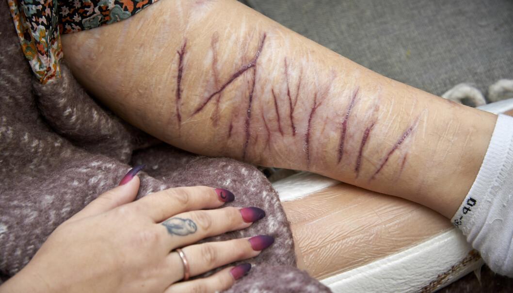 Matilda Mattssons ben med gamla ärr efter att hon skurit sig själv med rakblad och kniv.