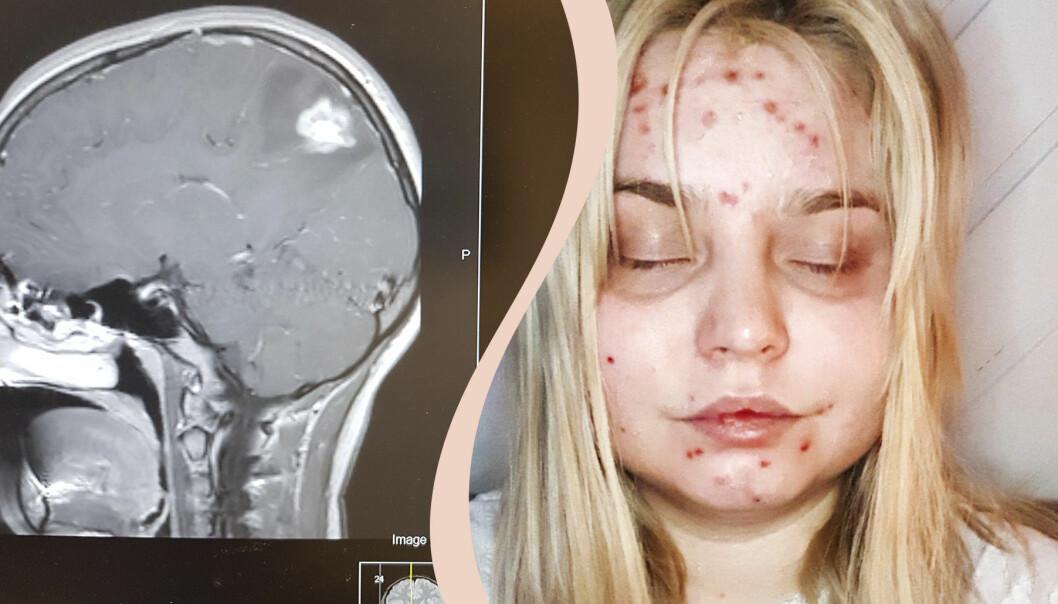 Kvinna med vita fläckar på hjärnan.