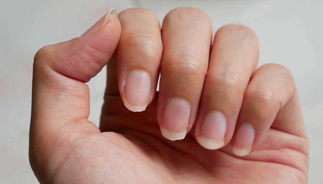 Naglarna avslöjar sjukdomar