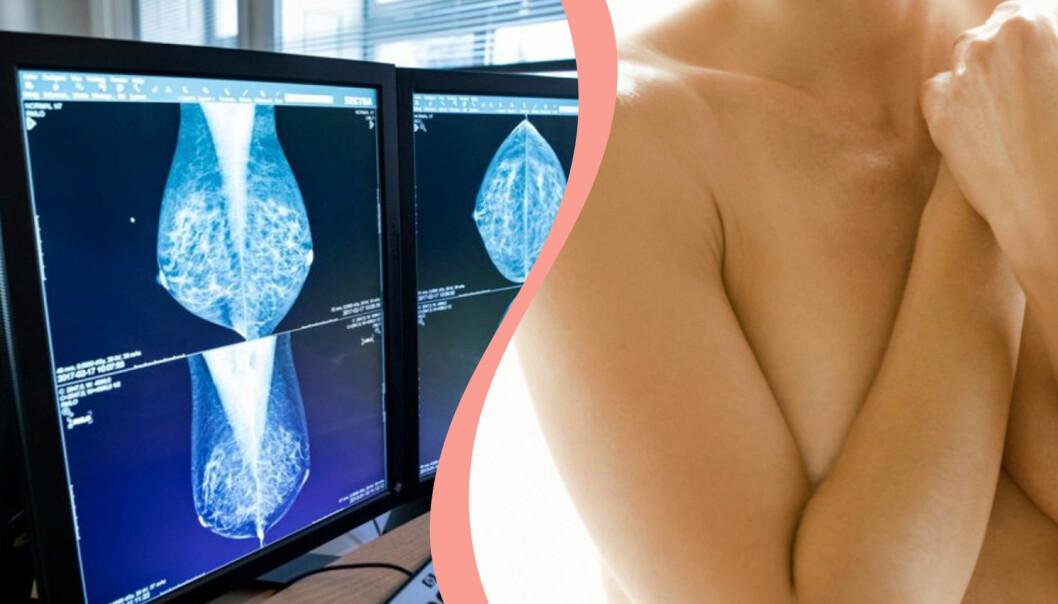 Till vänster, mammografi-bild, till höger, en kvinna som håller för sina bröst.