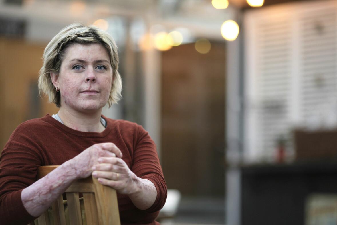 Emma Schols visar sina ärr efter branden där hon själv räddade livet på sina sex barn.