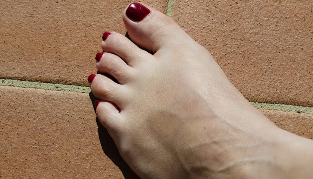 Tips för att slippa svullna fötter i sommarvärmen.