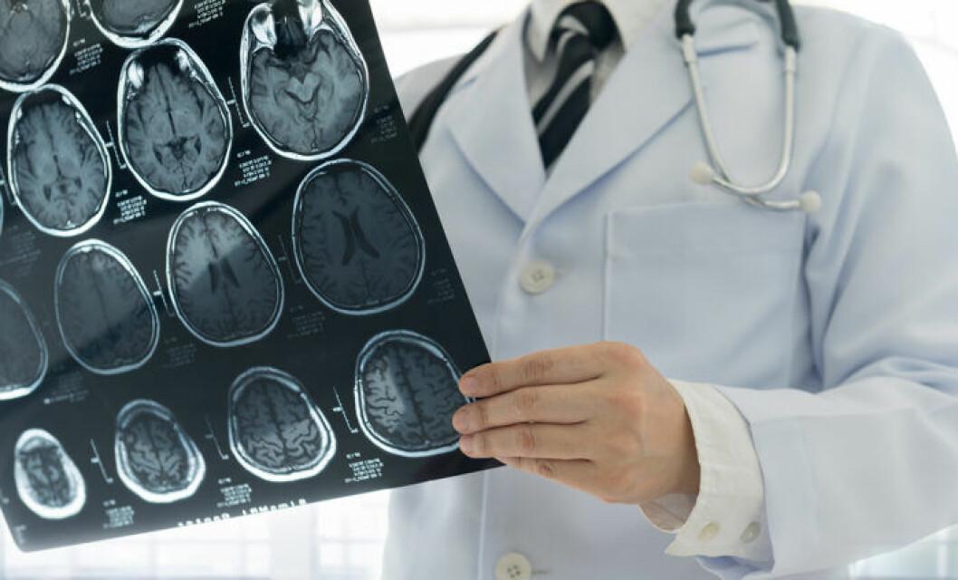 Röntgenbild över hjärna